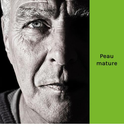 Peau mature